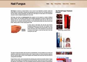Nail-fungus.net thumbnail